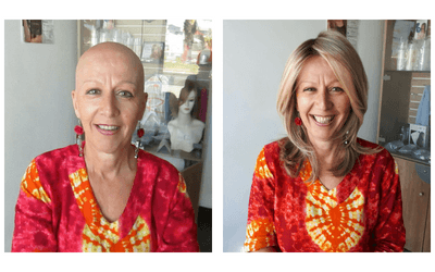 Gail's Hairloss Story