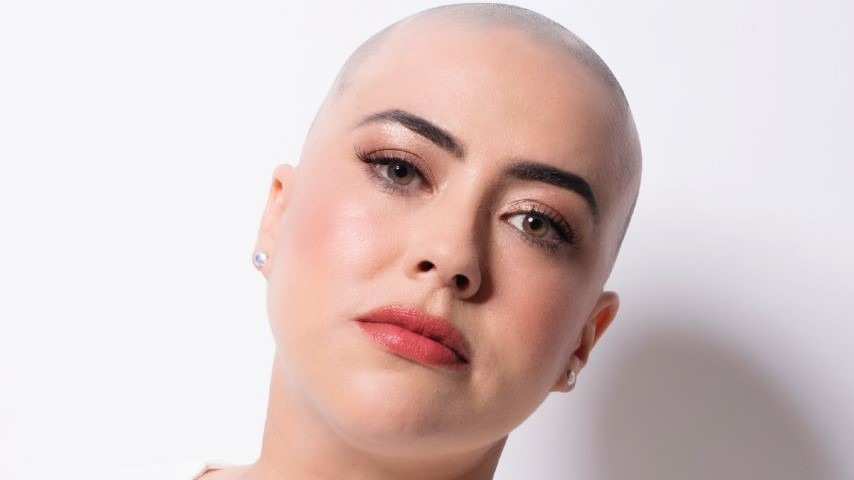Kelly showing her bald head caused by her Alopecia Areata
